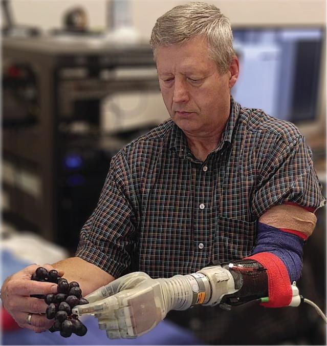 Prostesis Robotic Luke Skywalker Memungkinkan Orang Amputasi untuk Merasa Lagi 2