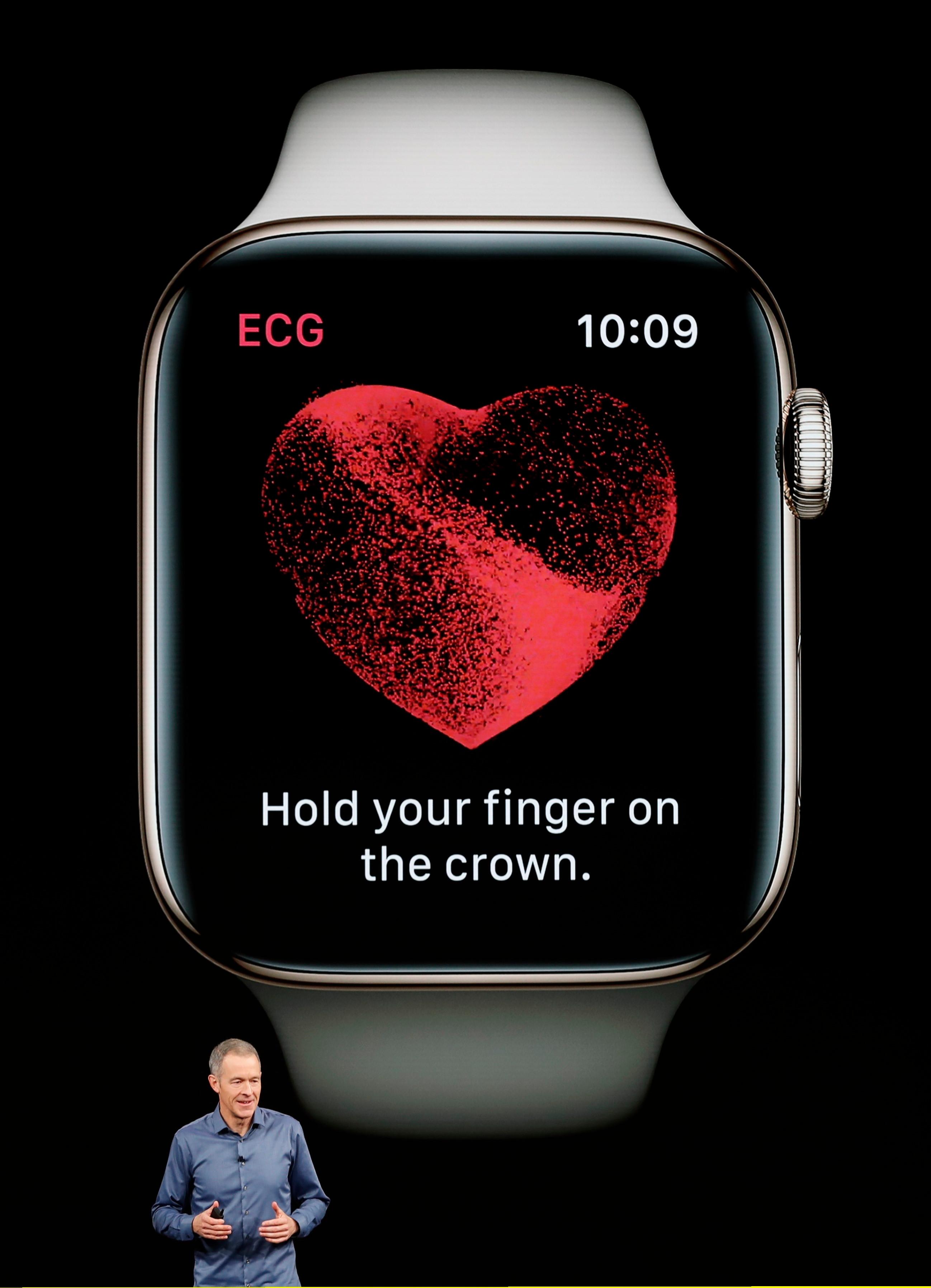 Дека Apple Watch 4 има импресивни нови функции, вклучително и внатрешна алатка ЕКГ за откривање на проблеми со срцето